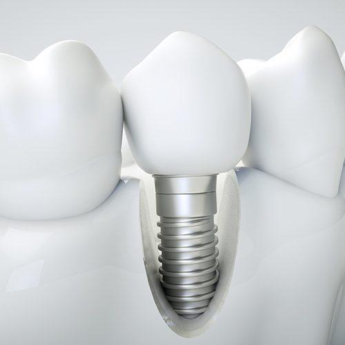 implantologia dentale - Studio dentistico Setaro ad Alessandria