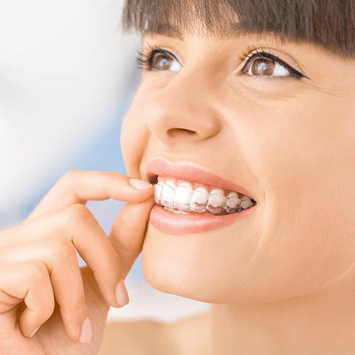 ortodonzia invisibile - Studio dentistico Setaro ad Alessandria