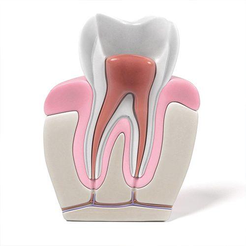 Parodontologia - Studio dentistico Setaro ad Alessandria