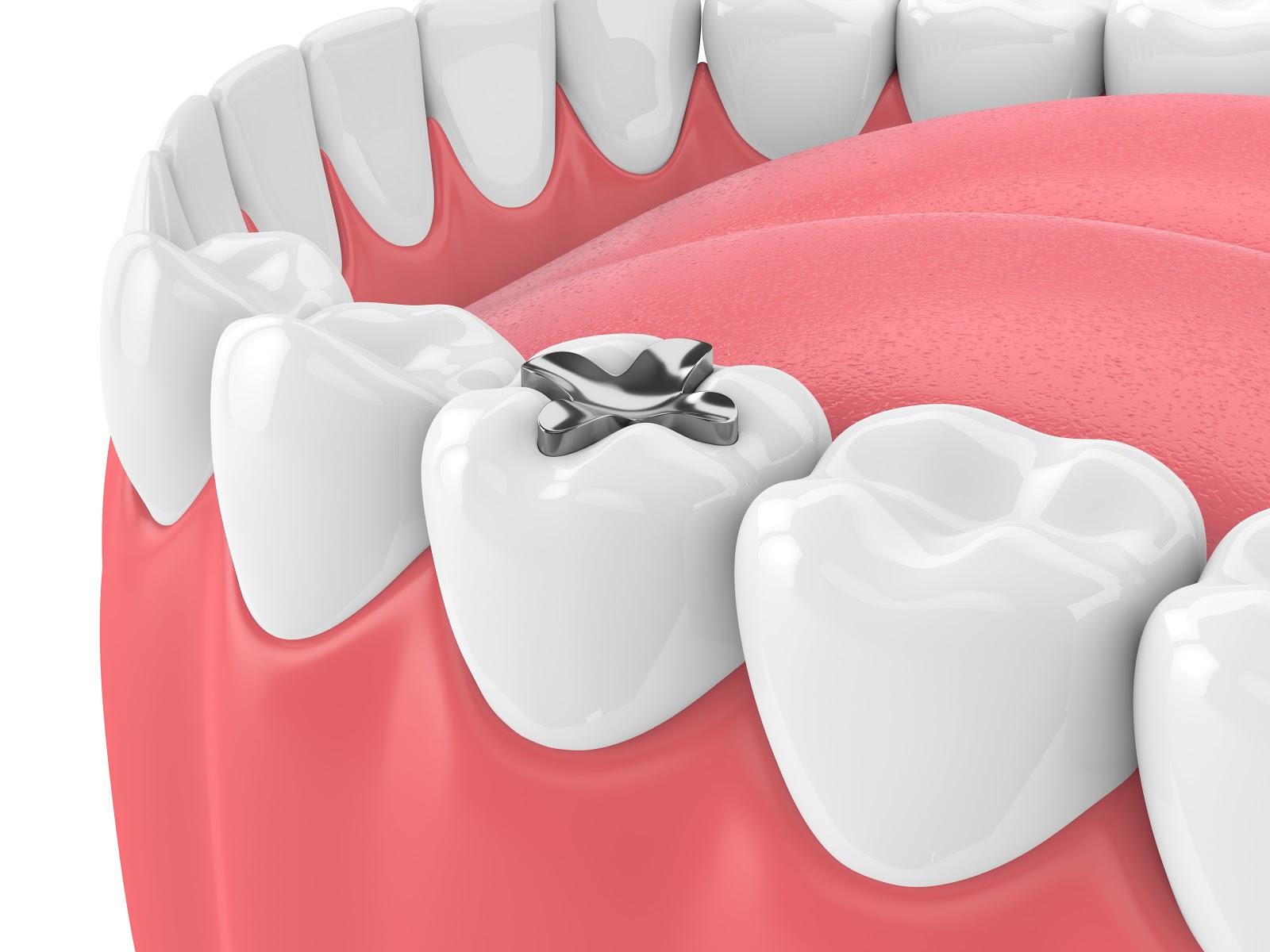 L'importanza di rimuovere otturazioni dentali in amalgama..